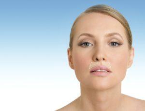 Кисетные морщины: причины появления, маски и упражнения