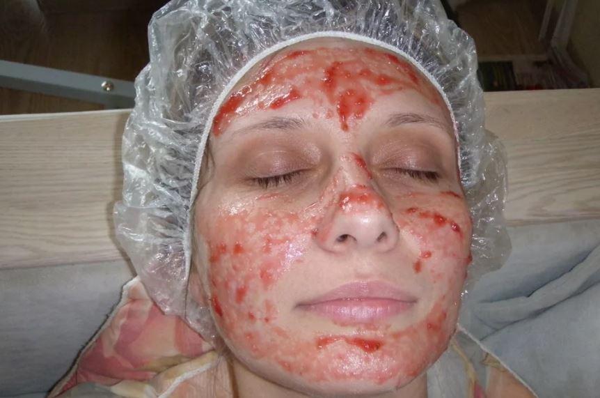 Самые эффективные рецепты масок для лица из клубники