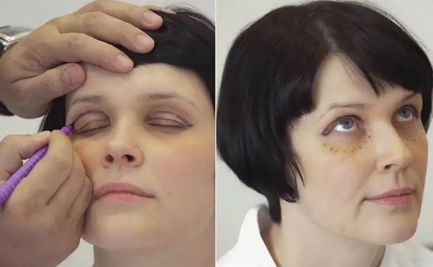 Лазерное омоложение лица и век – наноперфорация и блефаролифтинг