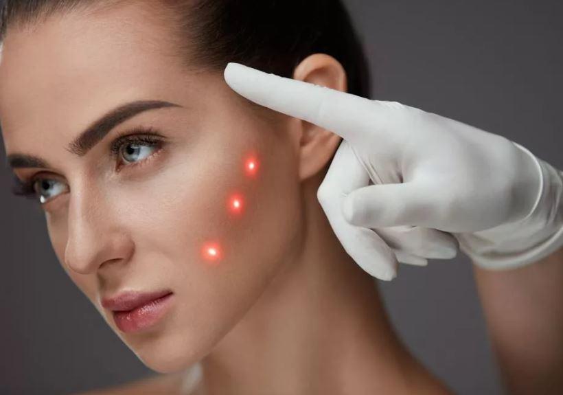 Омоложение кожи лица лазером после 50 лет