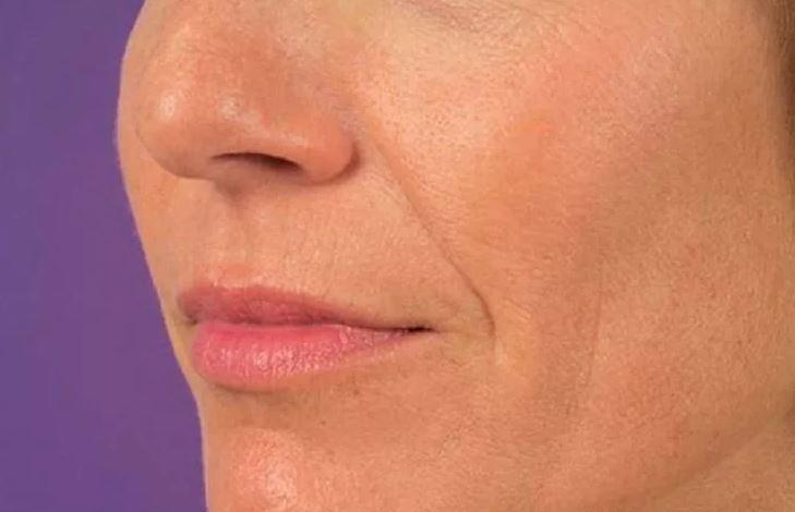 Как убрать носогубные складки без операций и салонных процедур